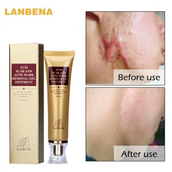 Гель от шрамов и растяжек LANBENA Scar Acne Removal Gel, 30 мл
