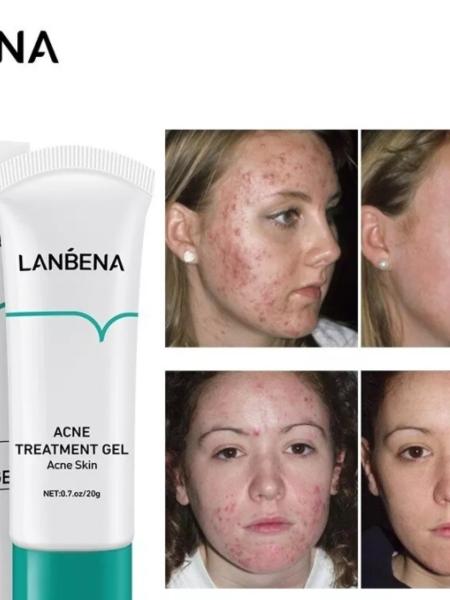 Lanbena Acne Treatment Gel Гель для лечения акне с экстрактом чайного дерева, 20 гр